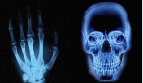 Программу Рентген На Телефон 240Х320